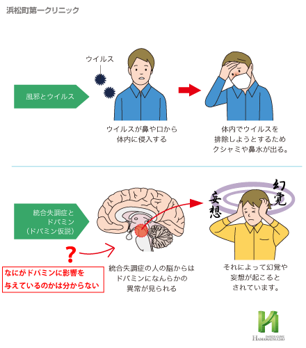 統合 失調 症