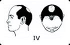 ハミルトン・ノーウッド分類「�W」