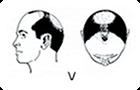 ハミルトン・ノーウッド分類「�X」