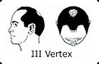 ハミルトン・ノーウッド分類「�V Vertex」