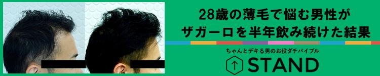 28歳の薄毛で悩む男性がザガーロを半年飲み続けた結果【浜松町第一クリニック担当】